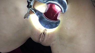 BRUTAL anal training toys, speculum, hard fisting makes prolapse rosebud